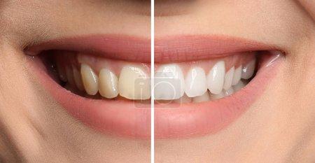 微笑的妇女前和后牙齿美白程序, 特写_高清图片_邑石网
